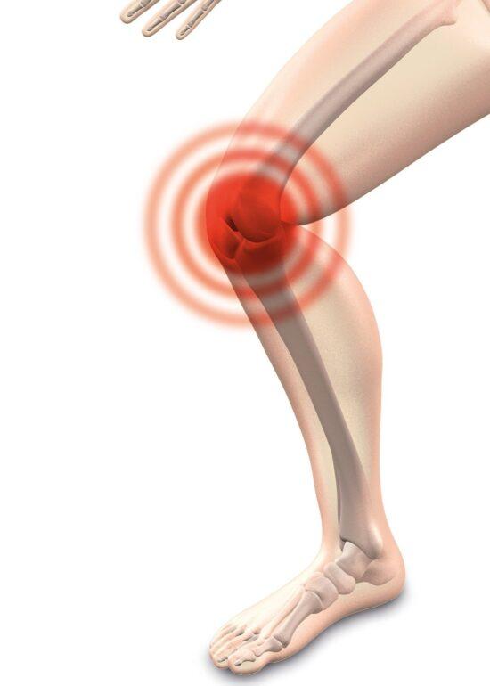 Vortrag Arthrose mit Schwerpunkt Knie